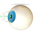 Bladeless Cataract Surgery