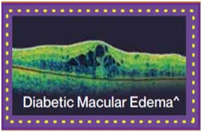 Retina with diabetic macular edema
