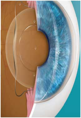 The surface of the eye